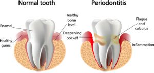 Normal Tooth VS Periodontitis