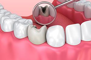Teeth Inspection Mirror